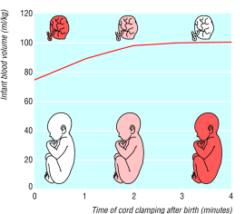 Delayed cord clamping graph
